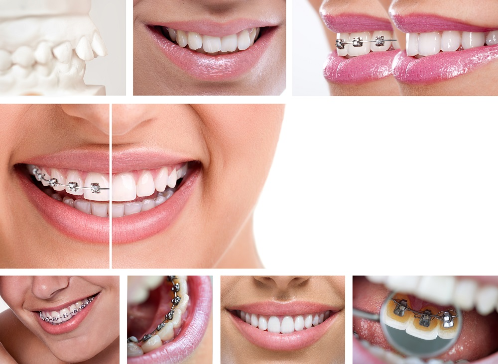 Effect of Braces