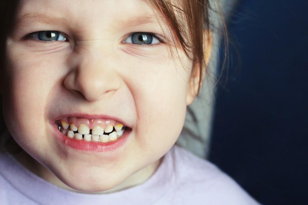 a kid's teeth