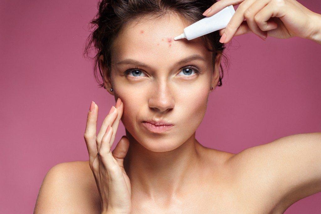 Woman applying acne treatment cream