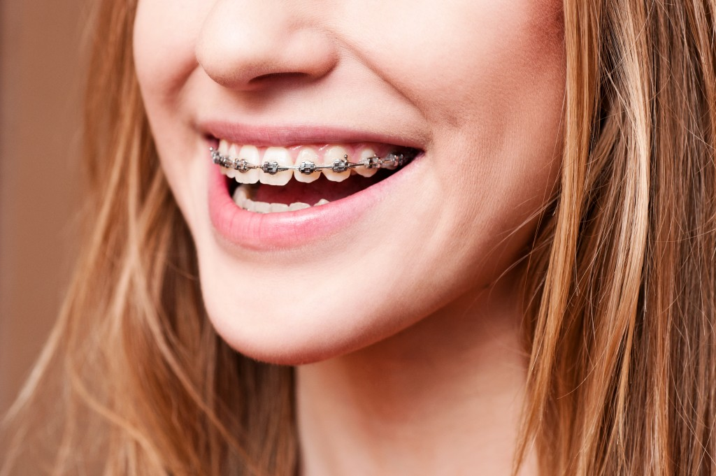 Woman smiling with dental braces