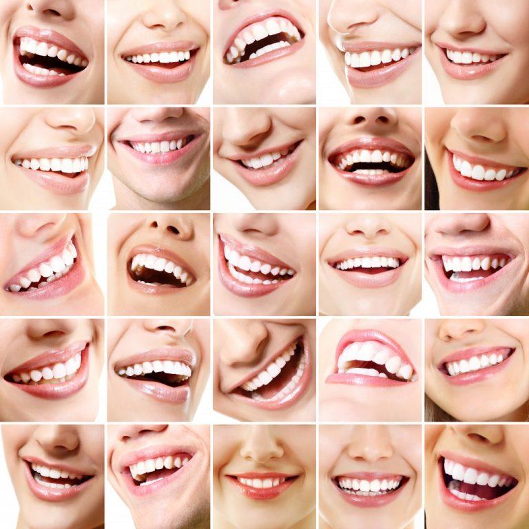 nice sets of teeth