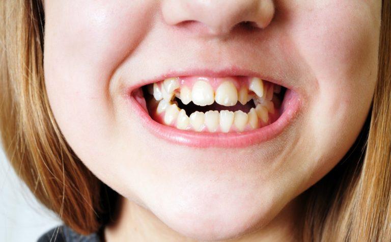 bad crooked teeth of girl