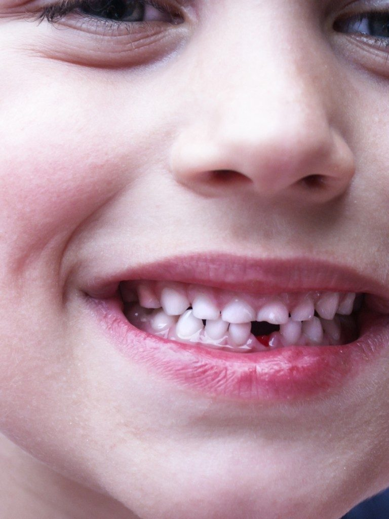 young boy shows his first fresh tooth-gap