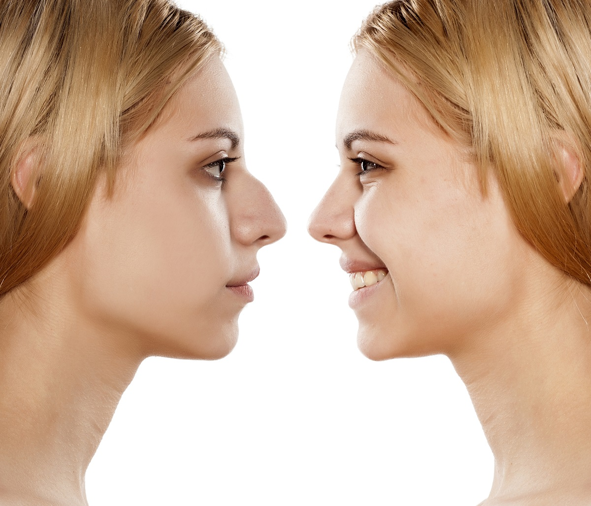 Before and after picture of female who went through a nose job operation